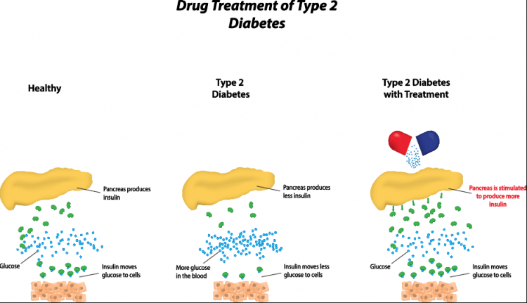 Drug treatment for Diabetes Type 2