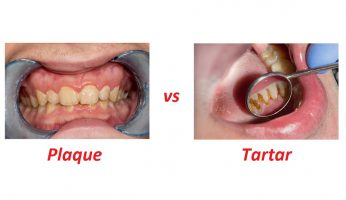 Plaque vs Tartar