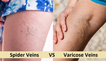 varicose veins vs spider veins