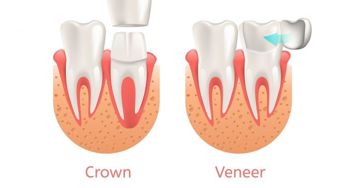 Difference between Crown and Veneer