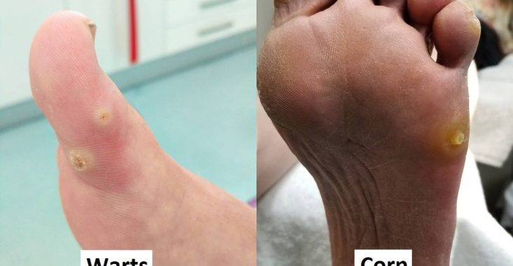 Difference Between Corn and Wart