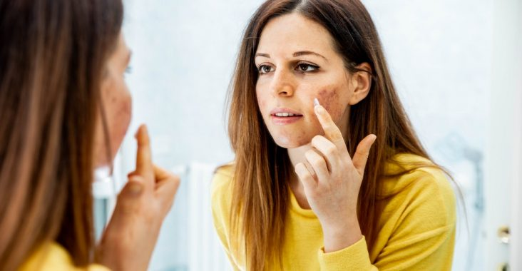 Difference Between Tretinoin Gel and Cream